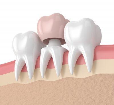 Установка коронок на зубы в Стоматологии Бюро 32