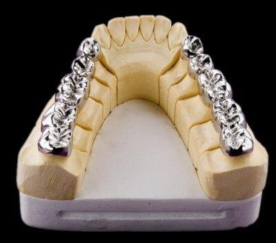 Установка цельнолитого мостовидного протеза в Стоматологии Бюро 32