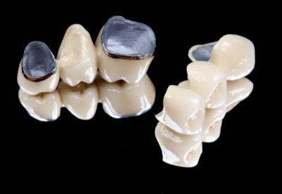 Установка металлокерамического мостовидного протеза в Стоматологии Бюро 32