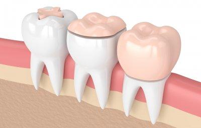 Микропротезирование зубов в Стоматологии Бюро 32